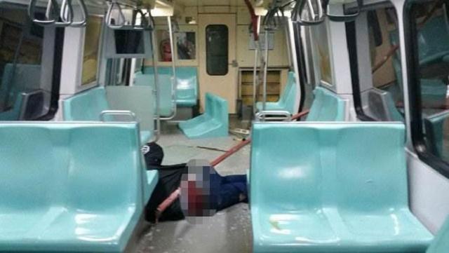 Kalçasına demir saplanan adam metroda işe başladı