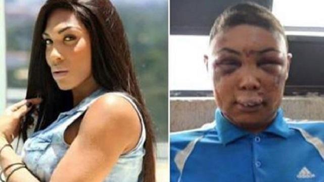 Trans kadına polis şiddeti: Hepimiz Veronica'yız