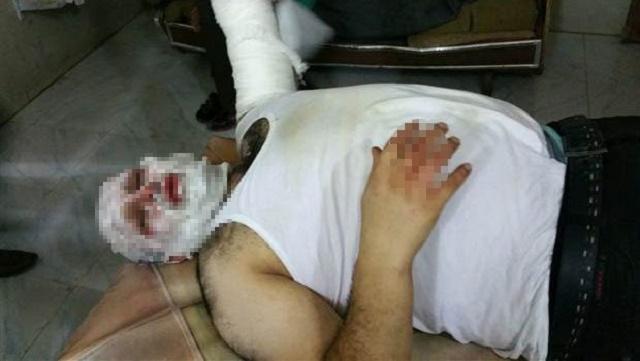 AA muhabiri füze saldırısında yaralandı!